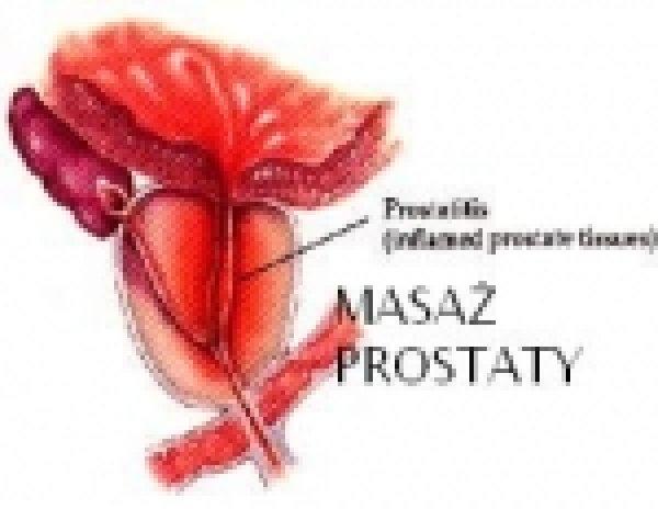 Masaż prostaty. Helena