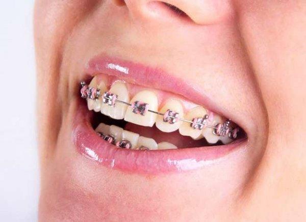 Indywidualna Specjalistyczna Praktyka Stomatologiczna Poradnia Ortodontyczna Magdalena Banasik (Kontrakt z NFZ)