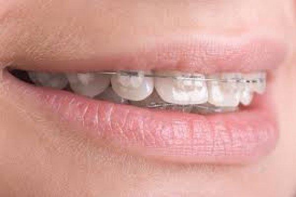 Gabinet Ortodontyczny lek. stom. spec. ortodonta Ewa Andrzejewska